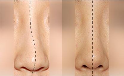 Crooked nose (rhinitis) – GRACE PLASTIC SURGERY